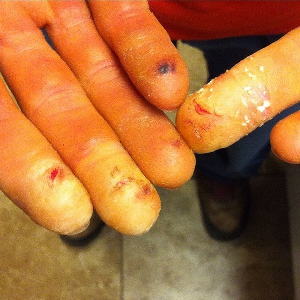 Alex Megos' fingers after a session on Lucid Dreaming